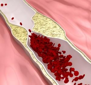 artherosclerosis disease