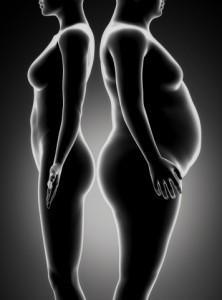 obesity-disease