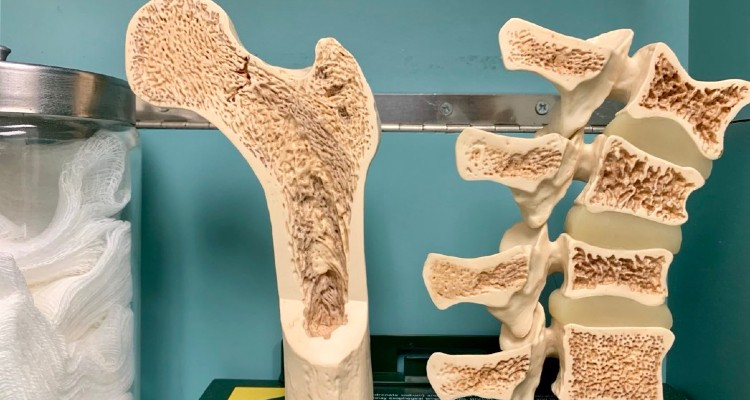 bone health, bone metabolism
